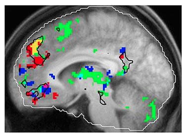 janata study brain scan